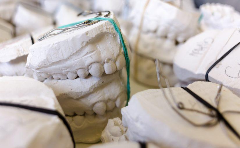 Złe postępowanie żywienia się to większe ubytki w jamie ustnej natomiast także ich zgubę